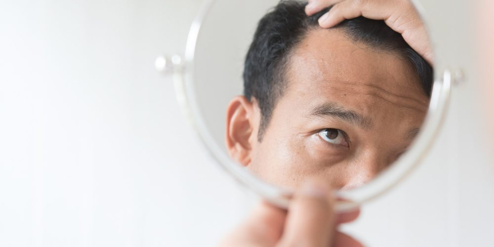 Men Are Worried About Hair Loss